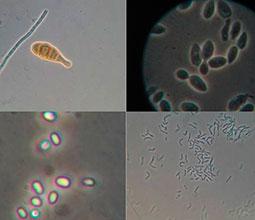Mikroorganismer i mikroskop.